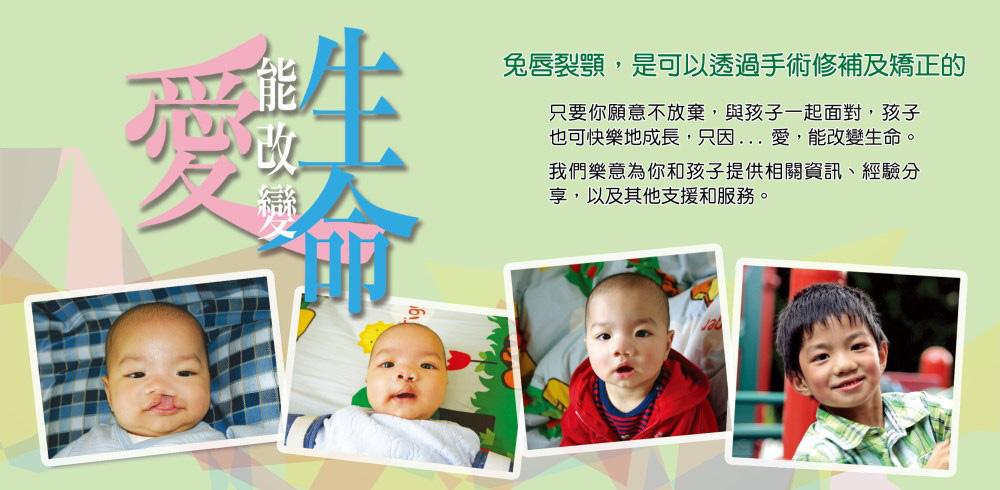 https://www.cleftlip.org.hk/wp-content/uploads/2020/06/banner1.jpg
