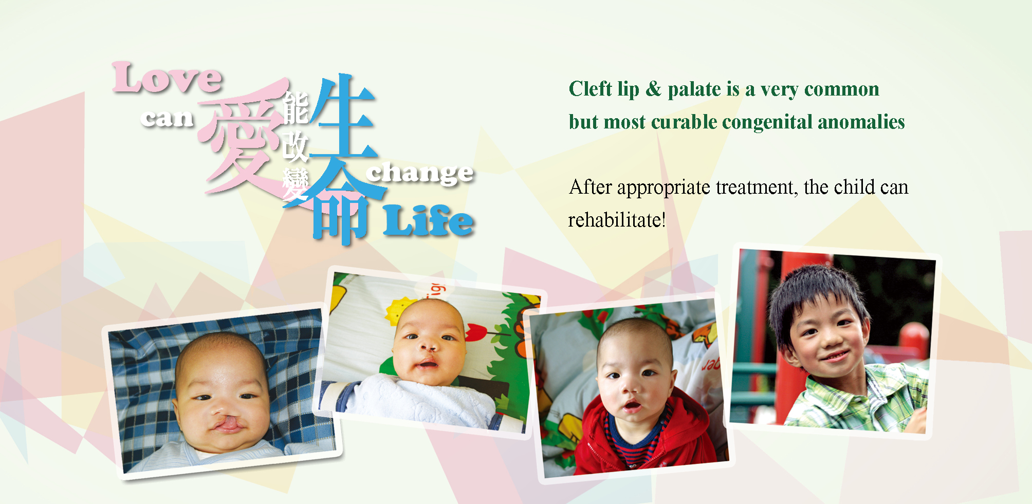 https://www.cleftlip.org.hk/wp-content/uploads/2020/07/20200709_banner_desktop2-copy.jpg